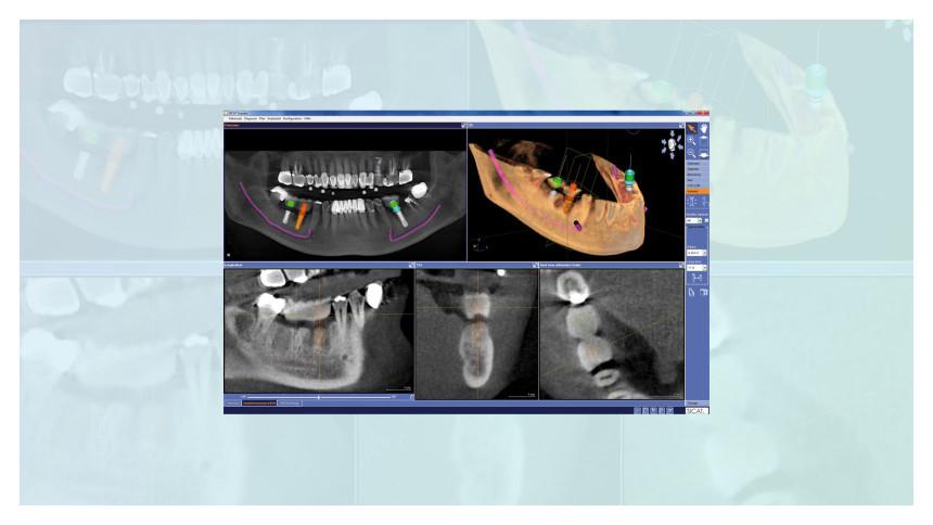 3D Implantatplanung